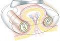 Процедура LPG массажа основана на механическом.  Основой методики является движение роликов, а не сила вакуума...
